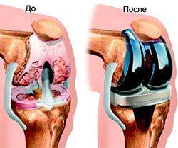Клиники лечения сустава колена упражнения при замене тазобедренного сустава